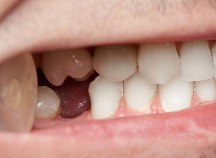 Woke up to a Teeth Falling out Dream? Here's what you need to know